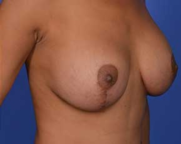 Before and After Breast Lift in NYC