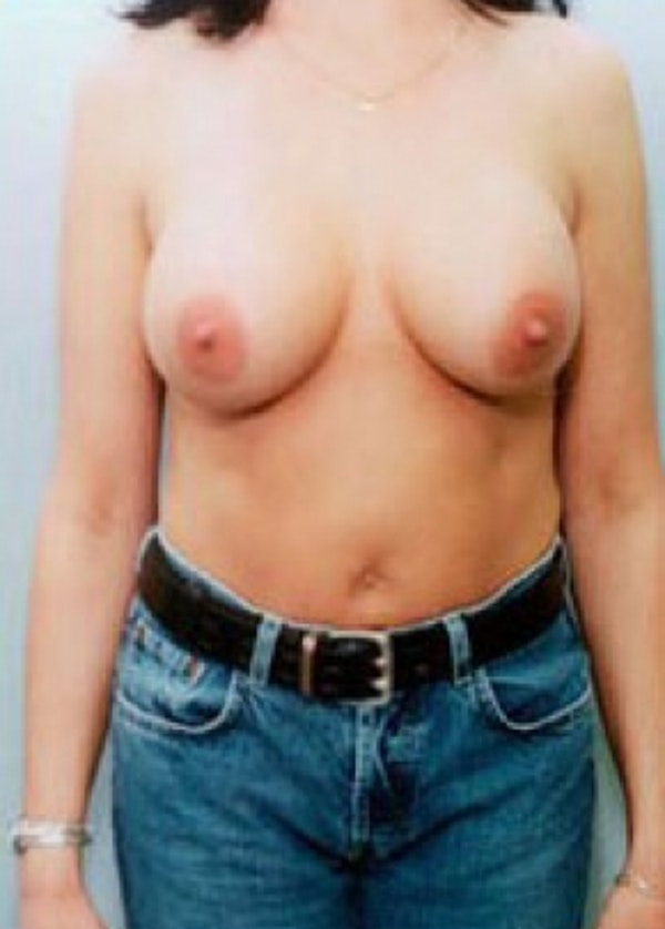 Breast Augmentation Gallery - Patient 5883220 - Image 2