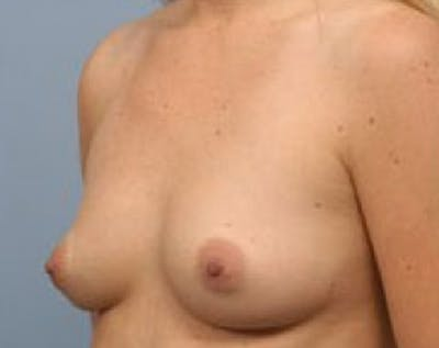 Breast Augmentation Gallery - Patient 5883222 - Image 1