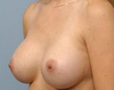 Breast Augmentation Gallery - Patient 5883222 - Image 2