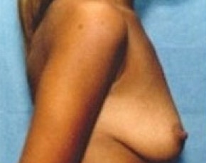 Breast Augmentation Gallery - Patient 5883223 - Image 1