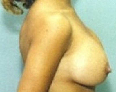 Breast Augmentation Gallery - Patient 5883223 - Image 2