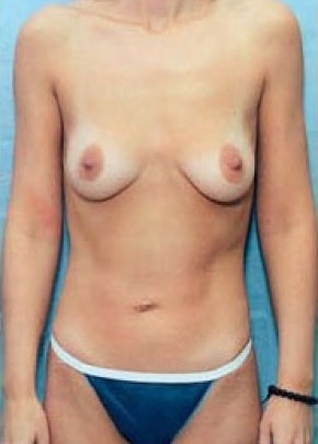 Breast Augmentation Gallery - Patient 5883225 - Image 1