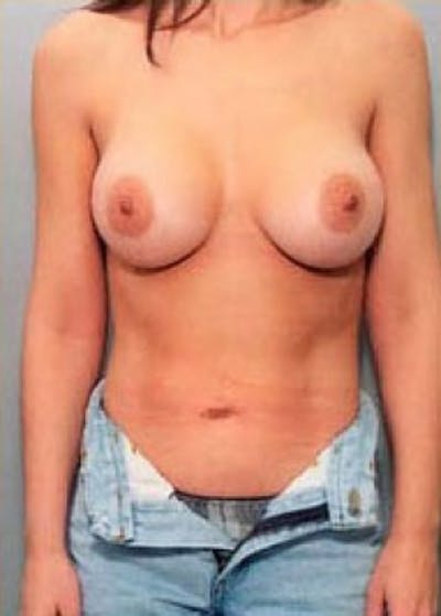 Breast Augmentation Gallery - Patient 5883225 - Image 2