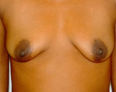 Breast Augmentation Gallery - Patient 5883228 - Image 1