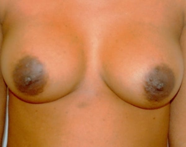 Breast Augmentation Gallery - Patient 5883228 - Image 2