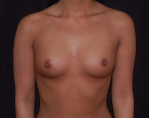 Breast Augmentation Gallery - Patient 5883229 - Image 1