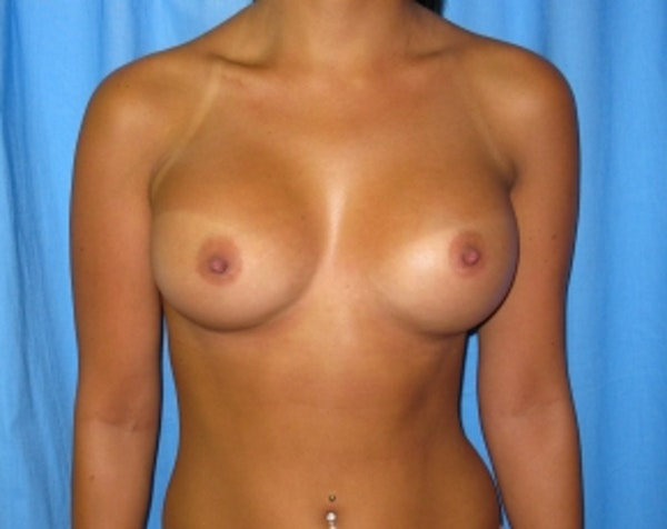 Breast Augmentation Gallery - Patient 5883229 - Image 2