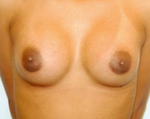 Breast Augmentation Gallery - Patient 5883231 - Image 2