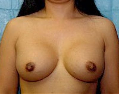 Breast Augmentation Gallery - Patient 5883232 - Image 2