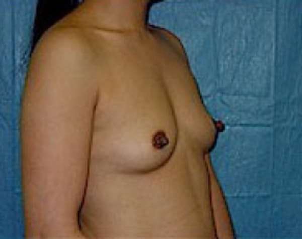 Breast Augmentation Gallery - Patient 5883232 - Image 3