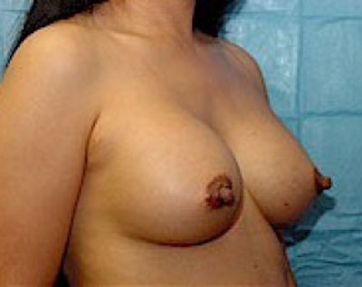 Breast Augmentation Gallery - Patient 5883232 - Image 4