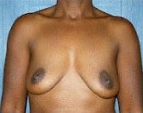 Breast Augmentation Gallery - Patient 5883233 - Image 1