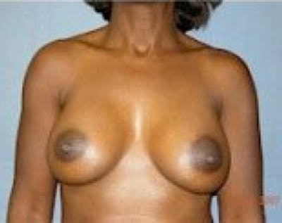 Breast Augmentation Gallery - Patient 5883233 - Image 2