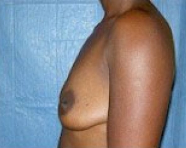 Breast Augmentation Gallery - Patient 5883233 - Image 5