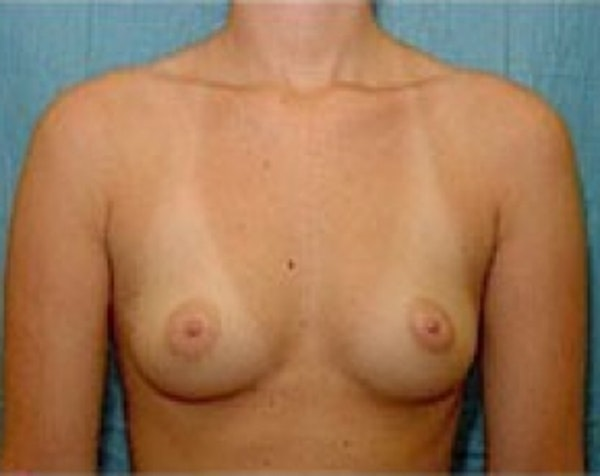 Breast Augmentation Gallery - Patient 5883237 - Image 1