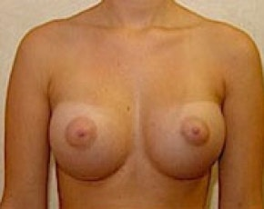 Breast Augmentation Gallery - Patient 5883237 - Image 2