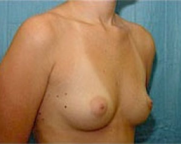 Breast Augmentation Gallery - Patient 5883237 - Image 3