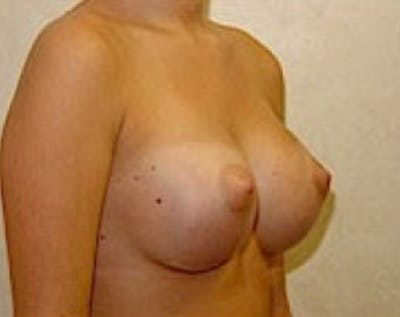 Breast Augmentation Gallery - Patient 5883237 - Image 4