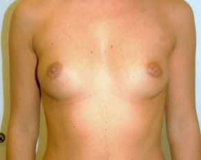Breast Augmentation Gallery - Patient 5883238 - Image 1