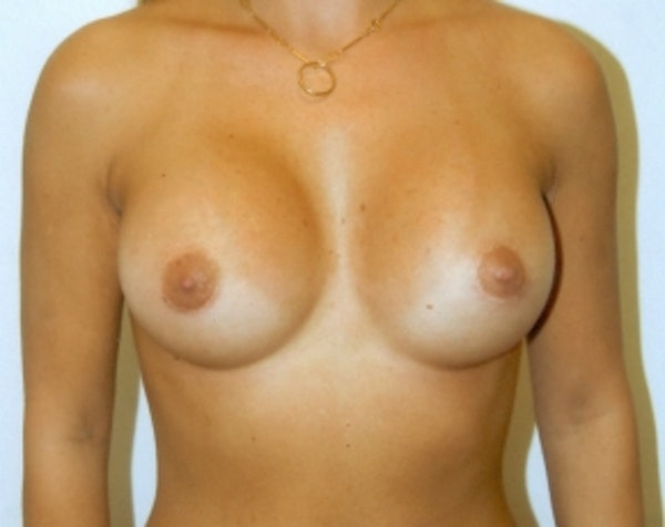 Breast Augmentation Gallery - Patient 5883238 - Image 2