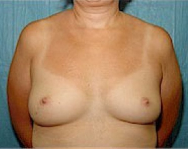 Breast Augmentation Gallery - Patient 5883247 - Image 1