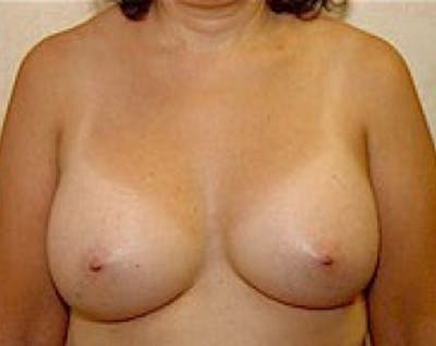 Breast Augmentation Gallery - Patient 5883247 - Image 34