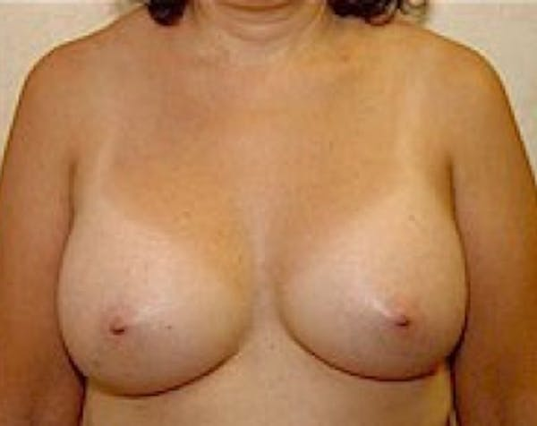 Breast Augmentation Gallery - Patient 5883247 - Image 2