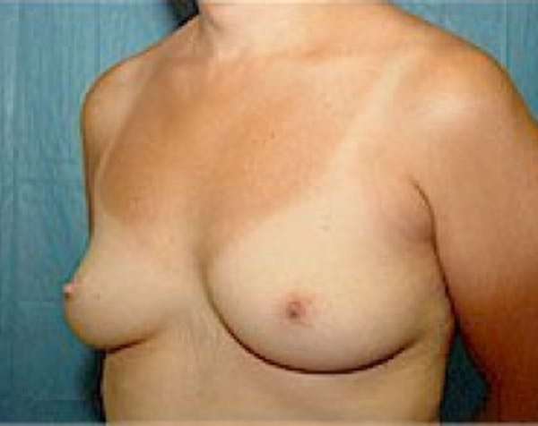 Breast Augmentation Gallery - Patient 5883247 - Image 3