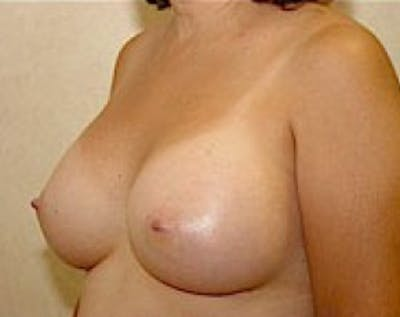 Breast Augmentation Gallery - Patient 5883247 - Image 4