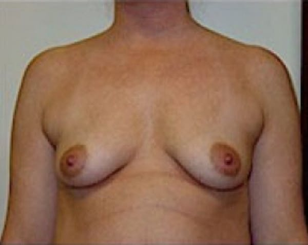 Breast Augmentation Gallery - Patient 5883248 - Image 1