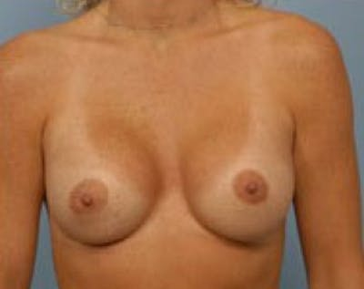 Breast Augmentation Gallery - Patient 5883250 - Image 2