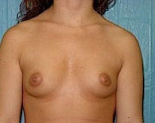 Breast Augmentation Gallery - Patient 5883253 - Image 1