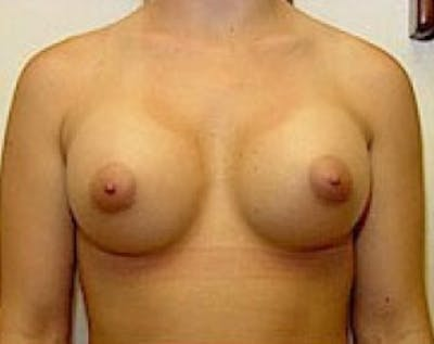 Breast Augmentation Gallery - Patient 5883253 - Image 37