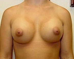 Breast Augmentation Gallery - Patient 5883253 - Image 2