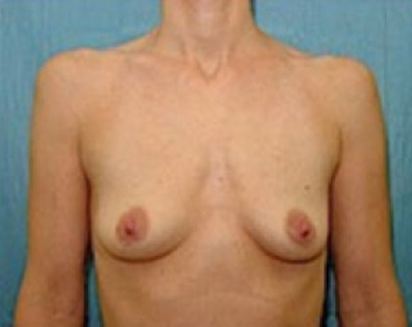 Breast Augmentation Gallery - Patient 5883254 - Image 1