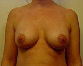 Breast Augmentation Gallery - Patient 5883254 - Image 2