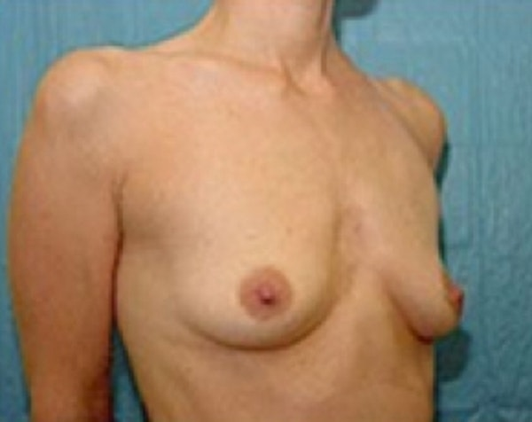 Breast Augmentation Gallery - Patient 5883254 - Image 3