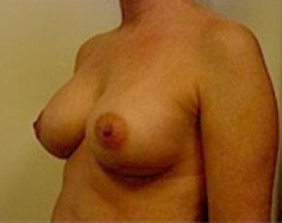 Breast Augmentation Gallery - Patient 5883254 - Image 4