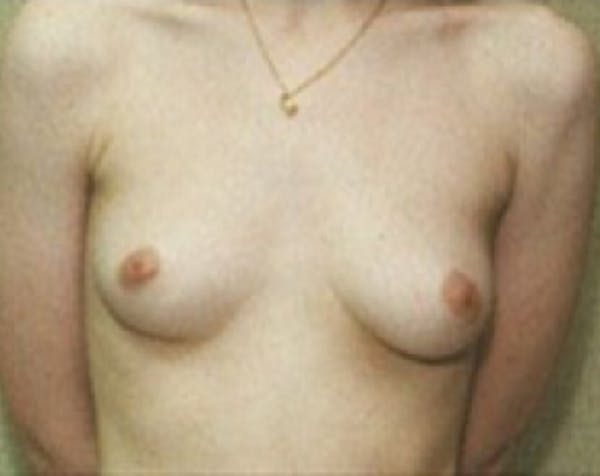 Breast Augmentation Gallery - Patient 5883261 - Image 1