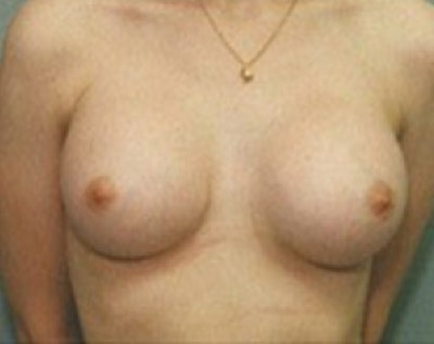 Breast Augmentation Gallery - Patient 5883261 - Image 2