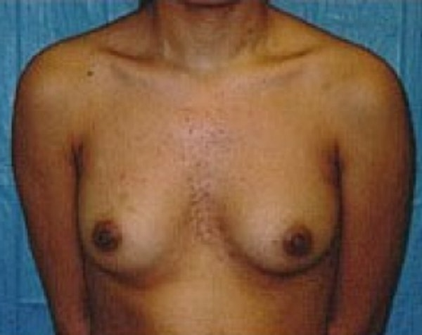 Breast Augmentation Gallery - Patient 5883262 - Image 1