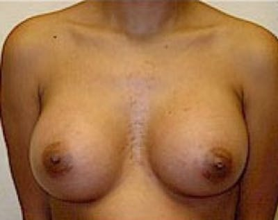 Breast Augmentation Gallery - Patient 5883262 - Image 40