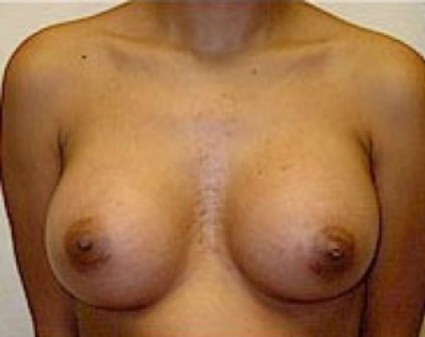 Breast Augmentation Gallery - Patient 5883262 - Image 2