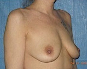 Breast Augmentation Gallery - Patient 5883265 - Image 1