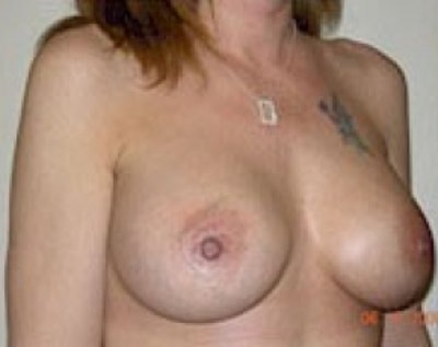 Breast Augmentation Gallery - Patient 5883265 - Image 2