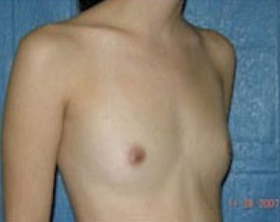 Breast Augmentation Gallery - Patient 5883268 - Image 1