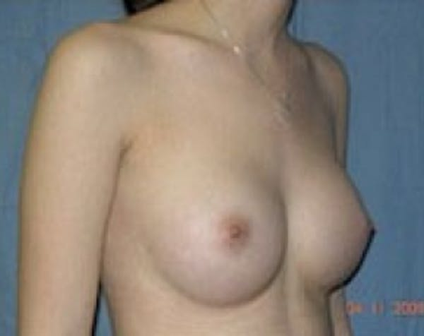 Breast Augmentation Gallery - Patient 5883268 - Image 2