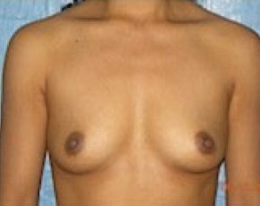Breast Augmentation Gallery - Patient 5883270 - Image 1