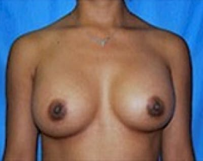 Breast Augmentation Gallery - Patient 5883270 - Image 2